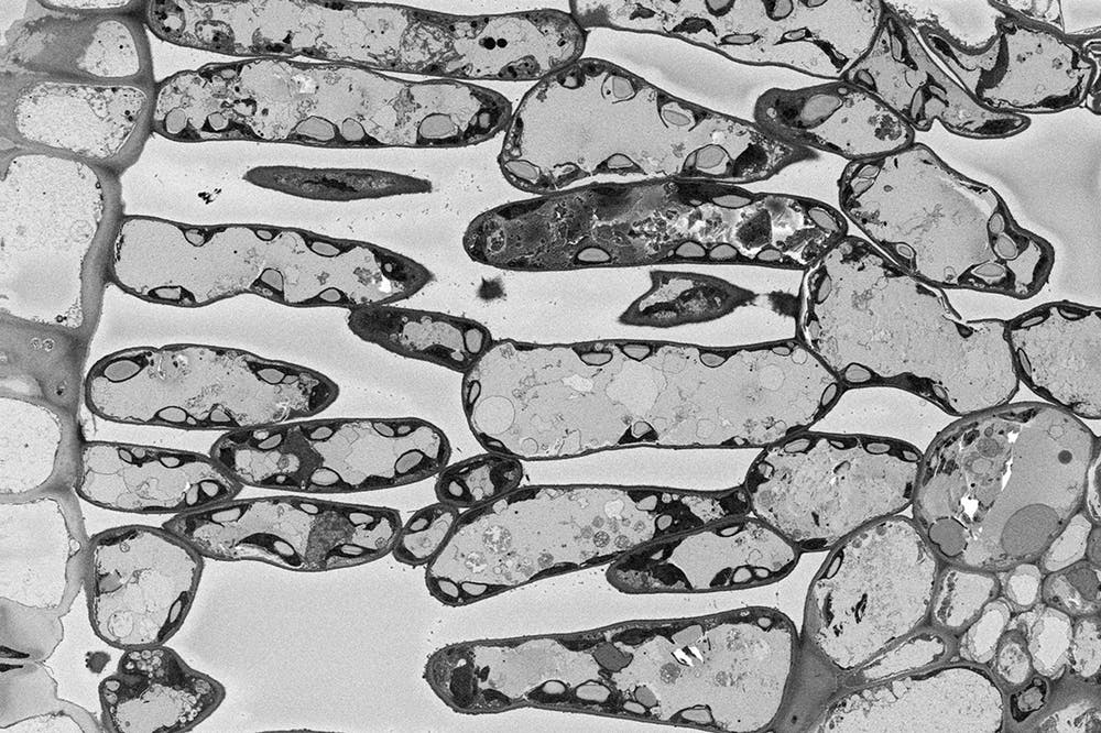 a greyscale micrograph of a river red gum leaf