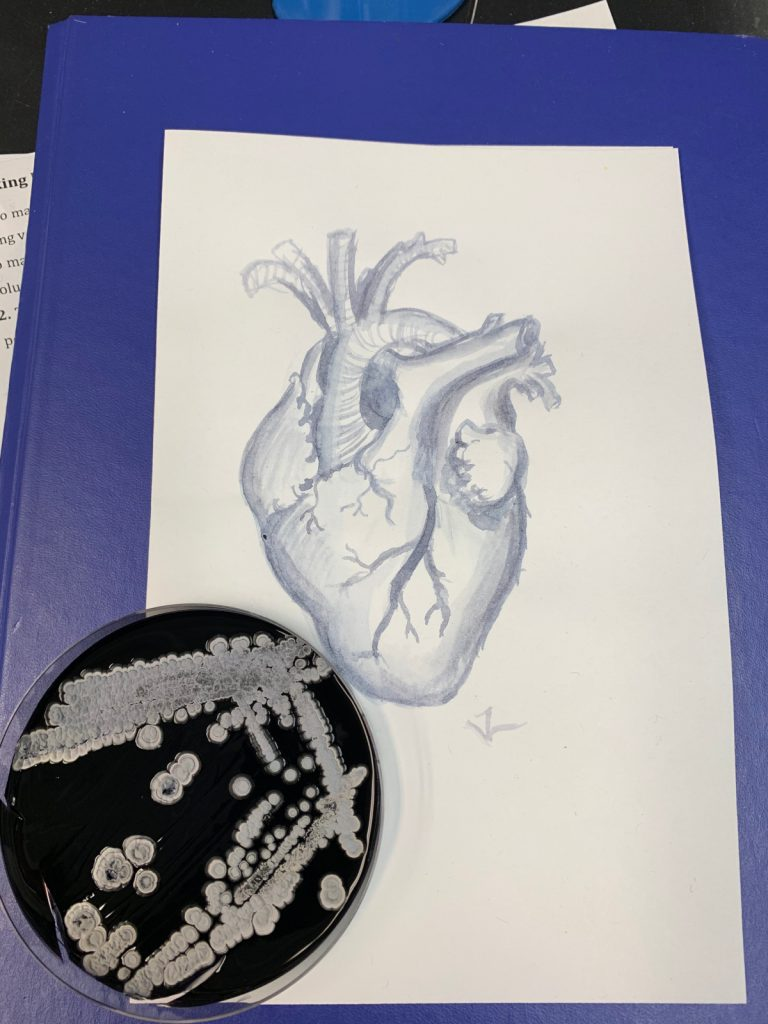 Blue painting of an anatomical heart. Next to it is a Petri dish with blue medium (agar) and white bacterial colonies.