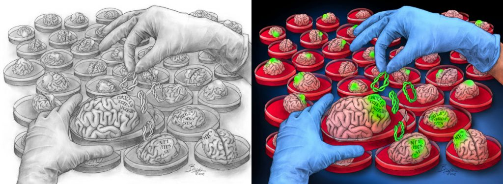 Many tiny brains sitting in Petri dishes. A gloved pair of hands is adding green DNA to one of the brains, which now has a green tumor. The right panel shows the image in full color whereas the left shows the image in black and white.