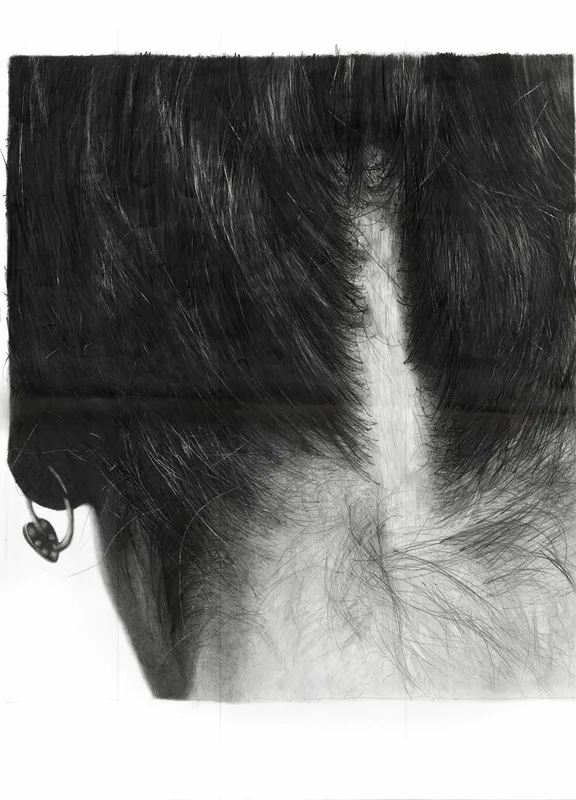 Back of woman's head with hair up to reveal a scar extending from the base of her neck upward.