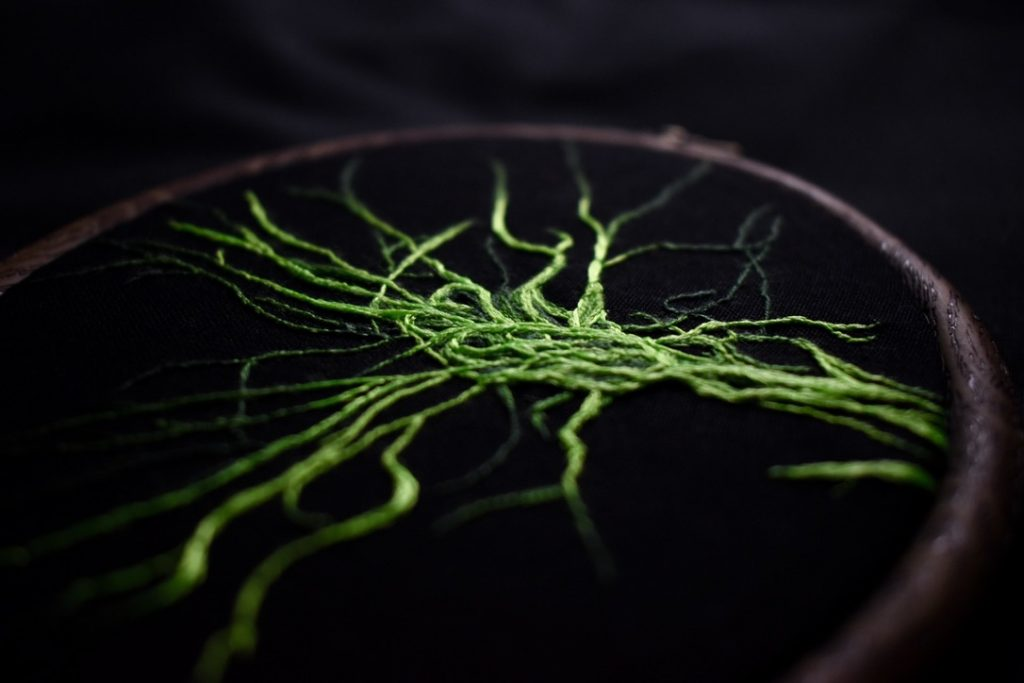 Bundle of intertwining nerves in fluorescent lime green.
