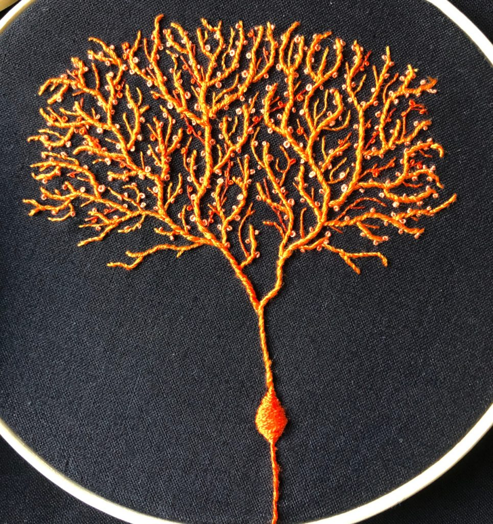 Orange Purkinje cell, which looks like a tree with many delicate branches.