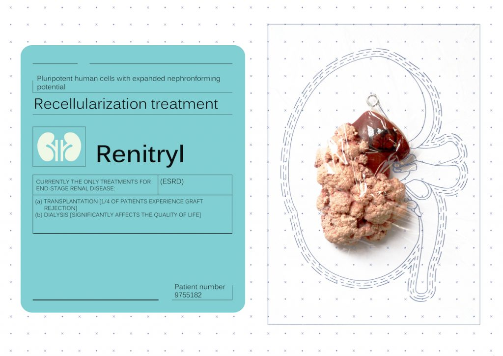 An artificial portion of a kidney described as a recellularization treatment for renal disease.