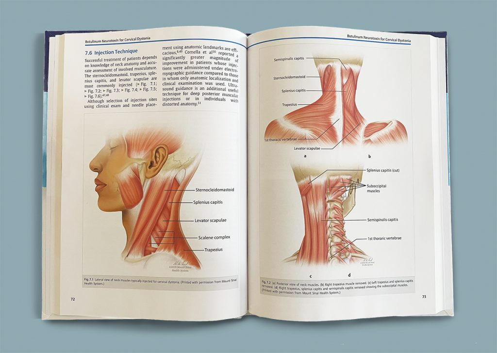Textbook that's open to a spread showing showing diagrams of different muscles in the neck.