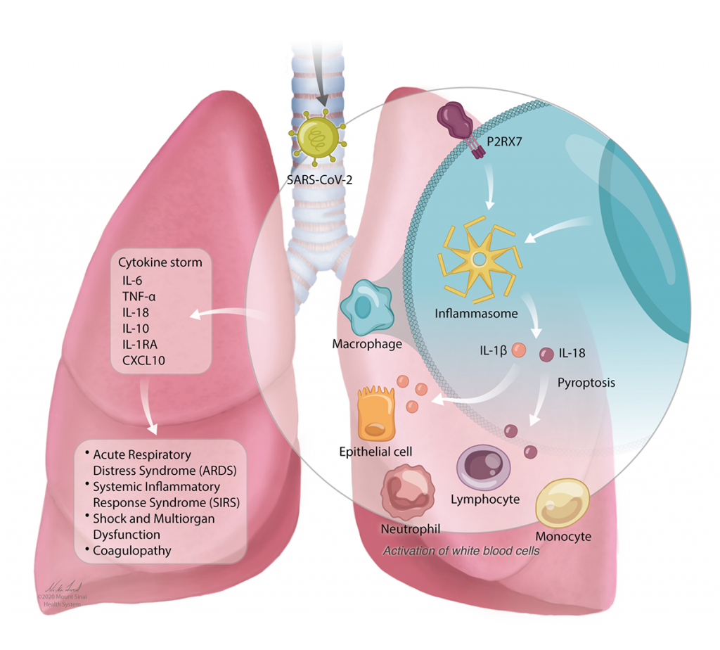 Illustration of lungs showing the reaction of different proteins and cells when SARS-CoV-2 (virus that causes COVID-19) enters the lungs.