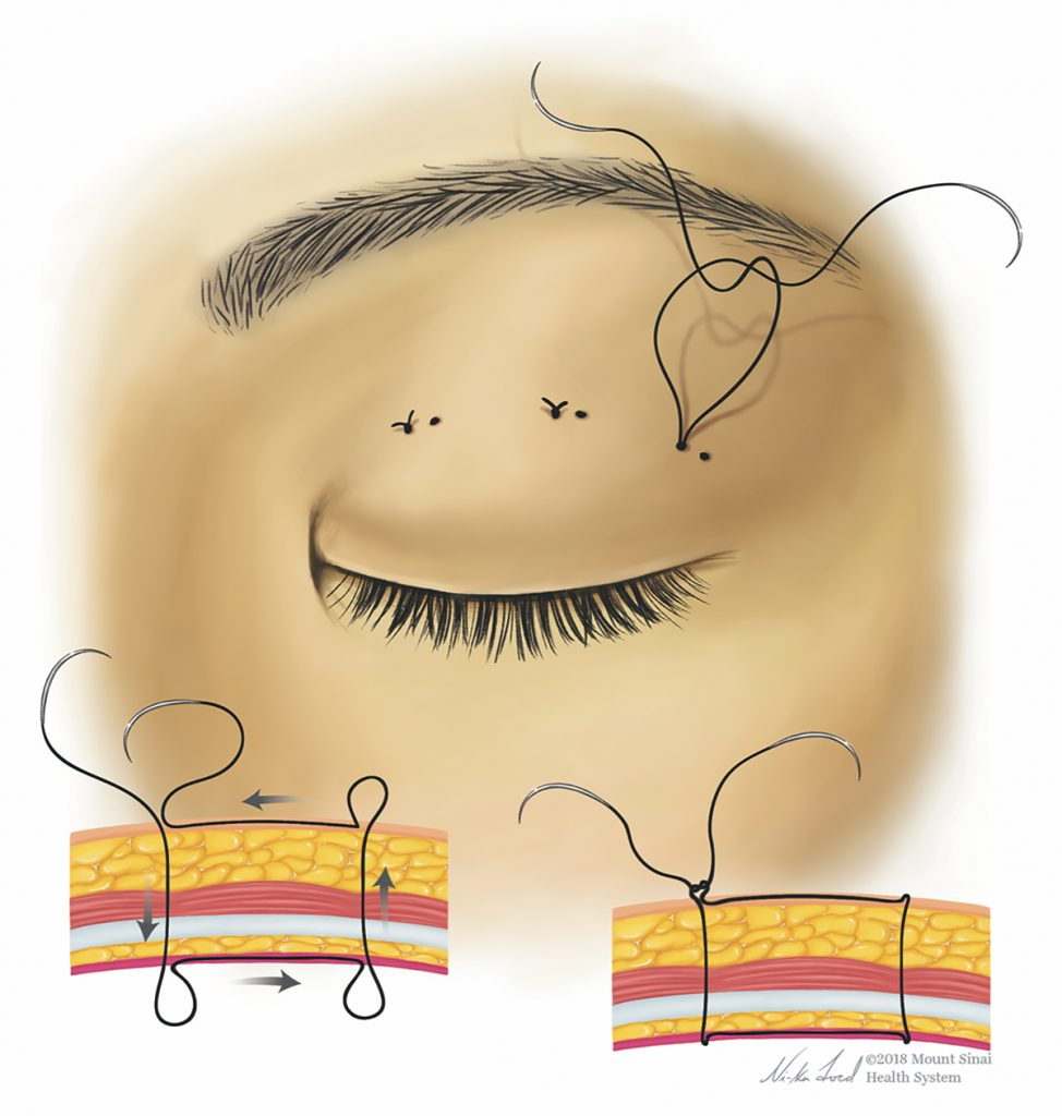 Illustration of sutures on a closed eyelid. Below is an illustration of the the direction the thread goes in the different skin layers.