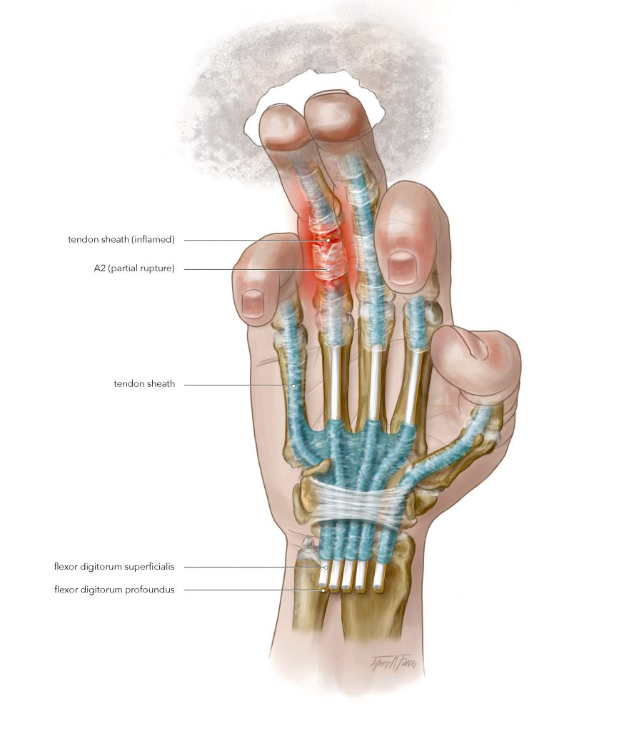 Tenosynovitis illustration (2019) made by Tiffany Fung. A pictorial representation of tenosynovitis an is inflammation of a tendon and its synovium.