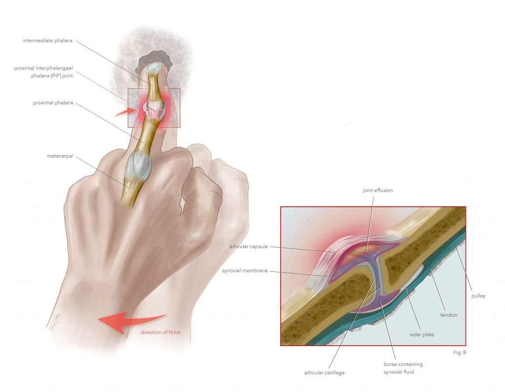 PIP Joint Capsulitis illustration (2019) made by Tiffany Fung with a close up view.
