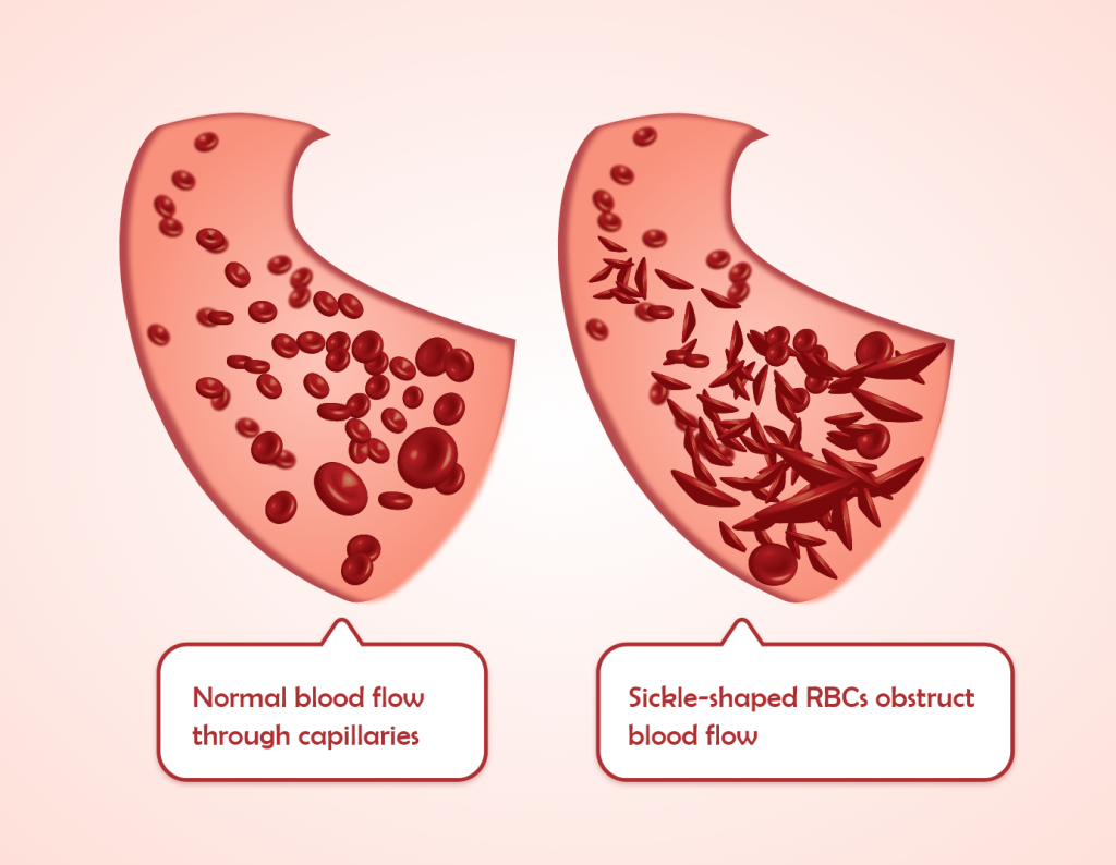 A snippet form of 2D animation - What happens in sickle cell anemia it shows the normal blood flow through capillaries vs what happens in the sickle shaped RBCs. by Rutuja Chalke
