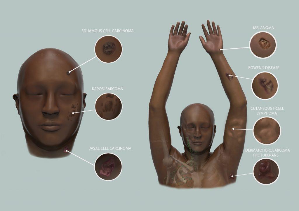 Skin Cancer Presentation in Dark Skin (Credit to University of Dundee) by Amie Fernandez
