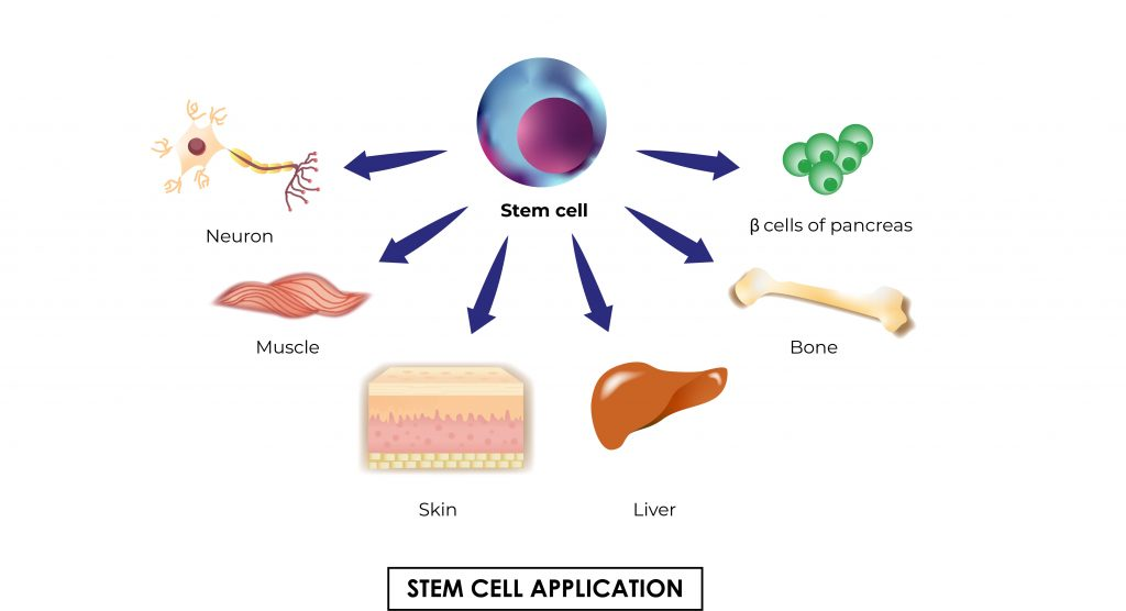 Pictorial representation of stem cell application it shows different how stem cells deviate to other organs by Rutuja Chalke