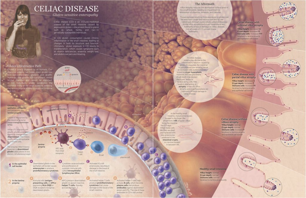 A poster representing pathology of celiac disease which is an immune mediated disease of the small intestine.