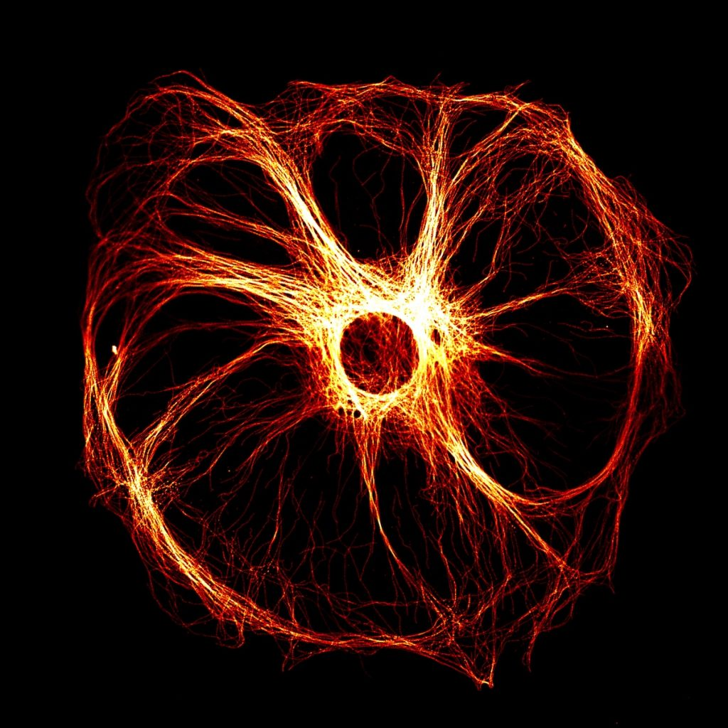 """Against a black background, a luminous red, yellow, and orange circular shape with a hole in the centre from which thin strands splay, creating about ten """"arms""""."""
